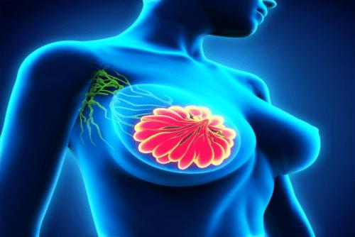 leczenie raka piersi Warszawa